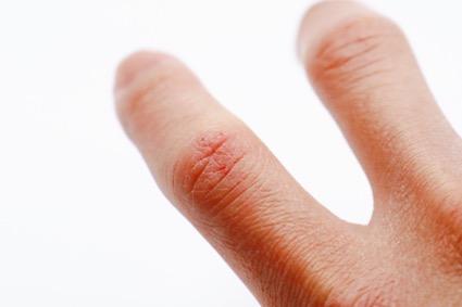 【医師監修】乾燥肌の治し方は?カサカサの原因や保湿アイテムなど対策方法も紹介